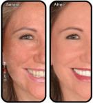 microdermabrasion-before-after2